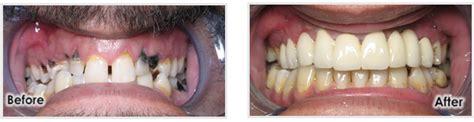 Comfort Dental Southfield by Cosmetic Dentistry Southfield Dentist