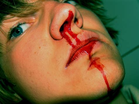 bloody nose bloody nose by maxk on deviantart