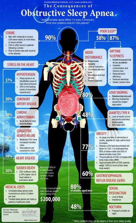Sleep Apnea by Infographic On Obstructive Sleep Apnea Osa Fauquier