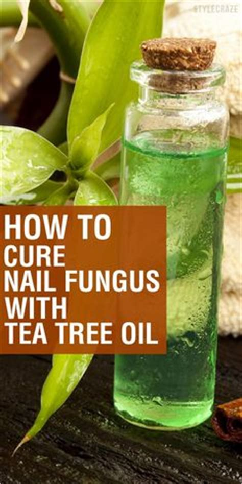 tea tree oil ingrown toenail ingrown toenail 1000 images about nail care on pinterest toenail