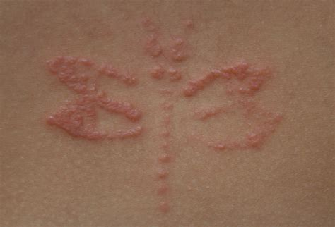 what does allergic contact dermatitis look like webmd