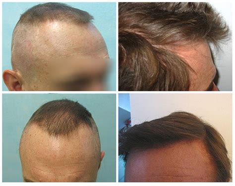 hair restoration hair transplant hair replacement follicular unit 301 moved permanently