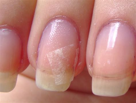 cracked nail chipped nail repair