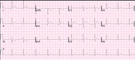 pattern recognition ecg dr smith s ecg blog pseudo high lateral stemi how not