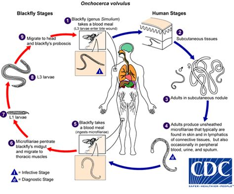 River Blindness Cycle cdc dpdx onchocerciasis