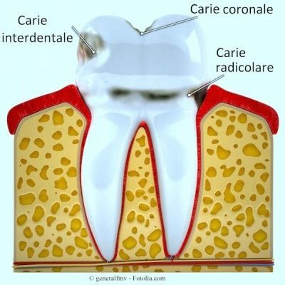 carie interna sintomi carie dentale come curare i denti da latte nei bambini