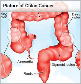 Can You Detect Colon Cancer From A Stool Sle by Colon Cancer Causes Treatment Symptoms Survival Rate