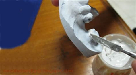 Dentasif Putih Untuk Lem Gigi Palsu 3 cara membuat gigi palsu akrilik 10 langkah pembuatan gigi palsu dari bahan akrilik