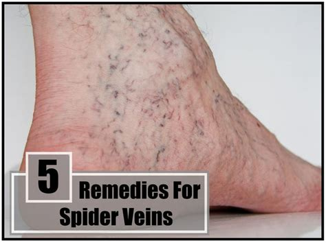 home remedies for spider veins home remedies