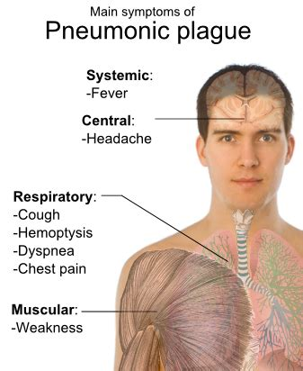 dying symptoms file symptoms of pneumonic plague png wikimedia commons