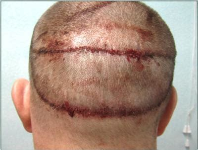 how to conceal hair transplant scar why mht why not hair transplantation smp common room