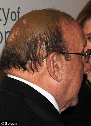 blackman bald cover up clive davis covers bald patch with badly applied spray on