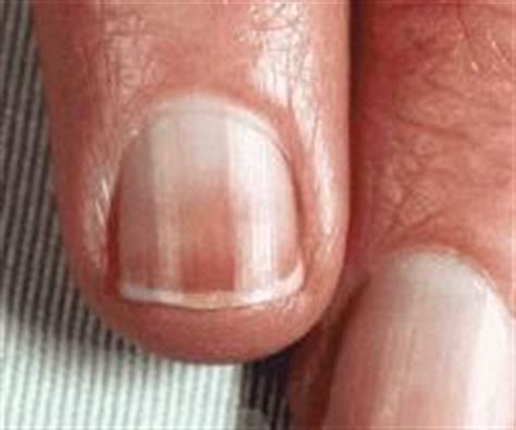 red nail beds medicine mdcj529 gt werner gt flashcards gt pdx hands and