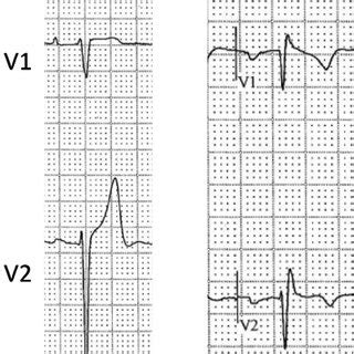 enlarged tracings comparing v1 and v2 in the standard and