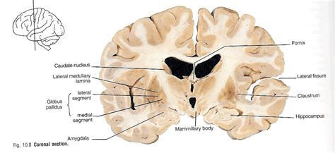 brain coronal section image 47 coronal section note hippocus
