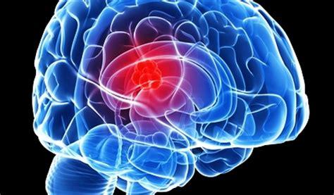 9 gejala penyakit radang otak paling serius
