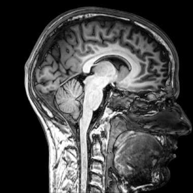 imagenes medicas resonancia magnetica nuevos an 225 lisis de im 225 genes m 233 dicas facilitan el estudio