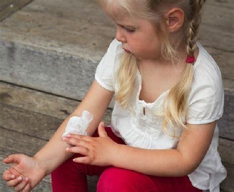 varicella interna sintomi herpes zoster olio di iperico