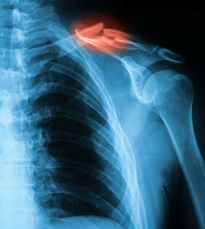 Pictures Of X Rays Of Broken Bones