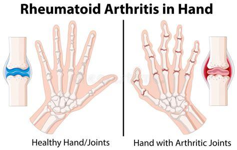 arthritis definition of arthritis by medical dictionary diagram showing rheumatoid arthritis in hand stock vector