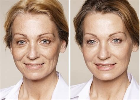 what exactly is restylane and how long does its effects last?