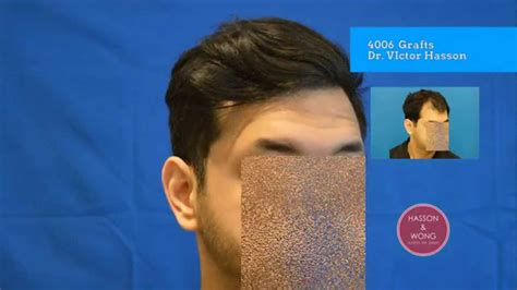harsha bhogle scar after transplantation incredible hair transplant before and after results dr