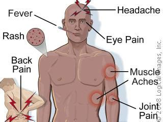 fever symptoms three cases of dengue fever confirmed on montserrat this week the montserrat reporter