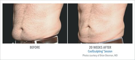 how much does a coolsculpting machine cost coolsculpting non invasive reduction in scottsdale az