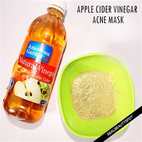 spot apple cider vinegar apple cider vinegar mask for acne free even toned skin