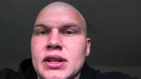 hair growth for men after chemo one week post bep chemotherapy hair loss and getting back