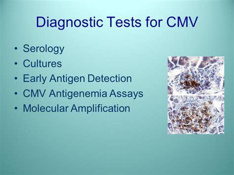 cmv test cytomegalovirus infection in renal transplantation ppt