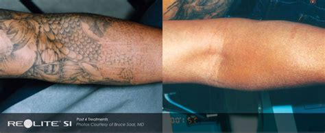 revlite tattoo removal reviews laser removal total laser center inc