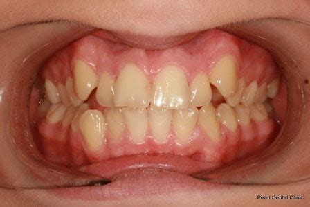 invisalign gallery   invisalign dentist orthodontist