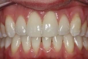 straightening teeth cosmetic dentists kendal dental