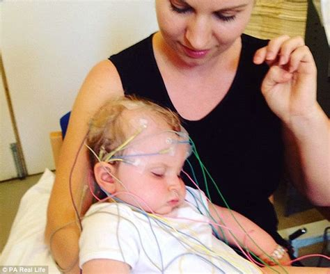 can a die from a seizure baby with epilepsy suffers 40 seizures a day due to genetic disorder shox