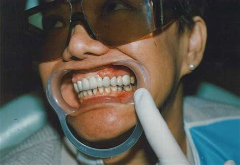 leicester square dental clinic dentist  leicester