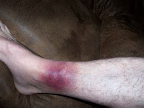 biting leg spider bite on leg pictures to pin on pinsdaddy