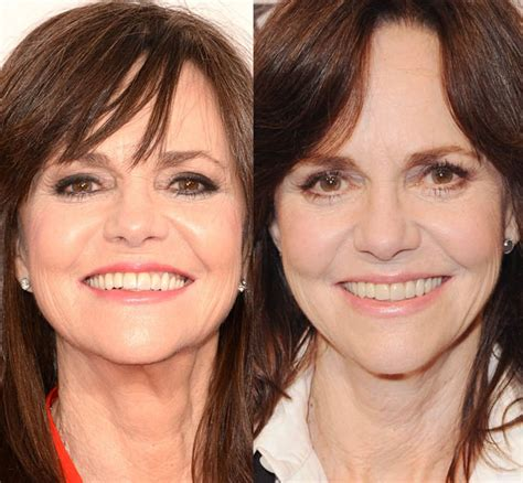 celebs who havent had neck lifts did sally field get plastic surgery looks young with