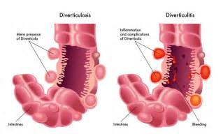 diverticulitis net health book