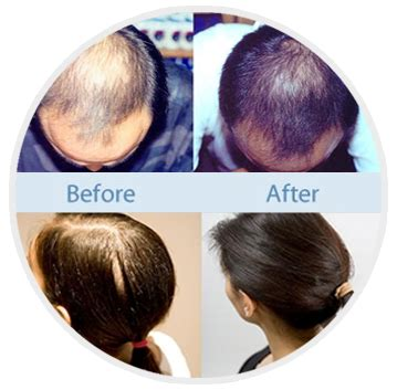 women hair loss before and after provillus natural hair provillus before and after women provillus before and