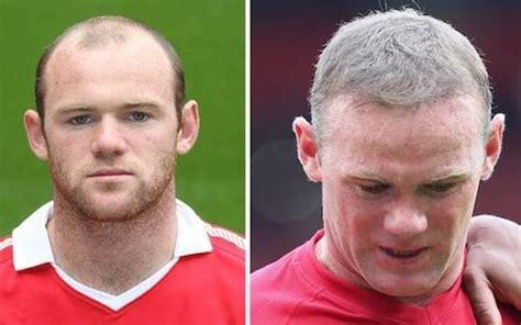 has sting had a hair transplant has sting had a hair transplant essex businessman who