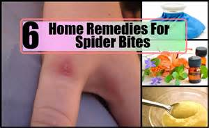 spider bites home remedy 6 top home remedies for spider bites remedy