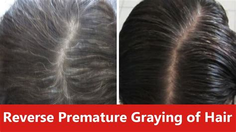 can gray hair turn black again how to reverse premature graying of hair naturally youtube