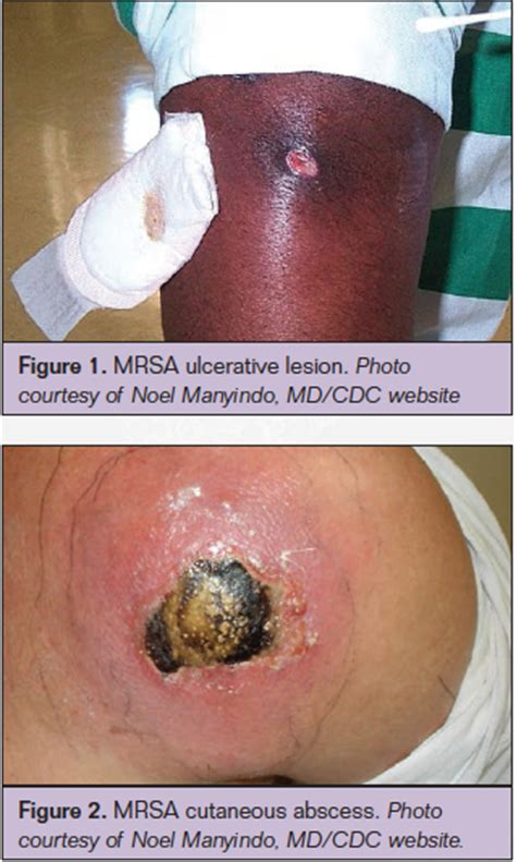 Mrsa Section by Community Acquired Mrsa In The Clinic Today S
