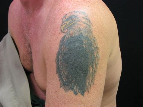 easiest way to remove tattoo 42 best removal images on different ways