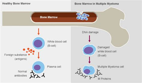 m protein and myeloma what is myeloma myeloma research