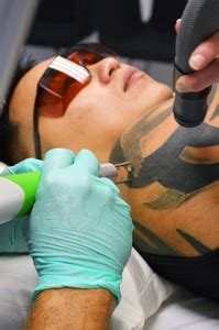 tattoo removal cost australia denmark laser tattoo removal training new look laser college