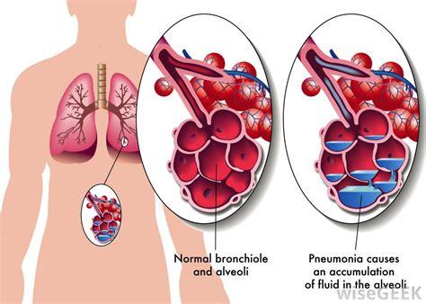diagram of bronchioles bronchioles