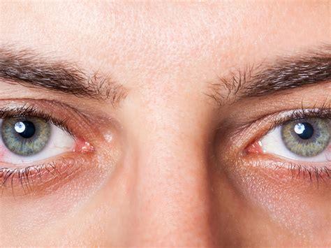 imagenes de ojos normales rote augen symptom trockener augen 171 hylo 174 eye care