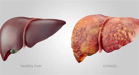 alimenti per disintossicare fegato depurare il fegato con rimedi naturali